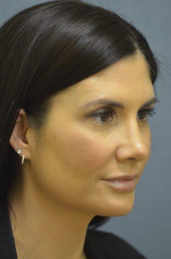Nasal Surgery