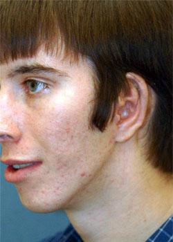 Ear Reconstruction (Microtia Reconstruction)