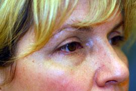 Lower Eyelid Blepharoplasty