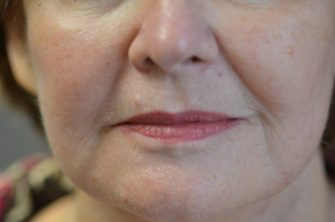 DOT Laser Resurfacing